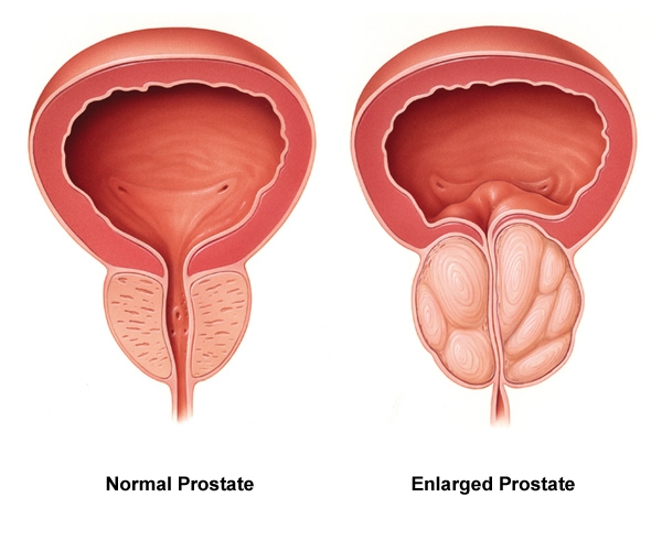 normální a zvětšená prostata