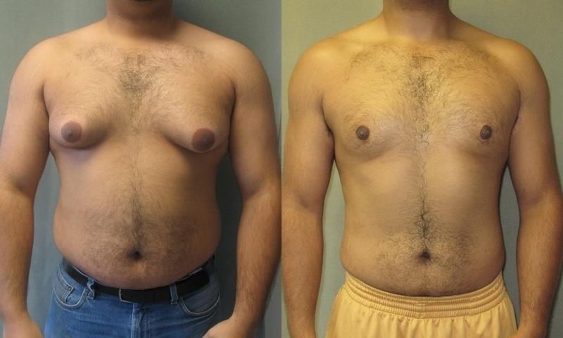 gynekomastie u mužů
