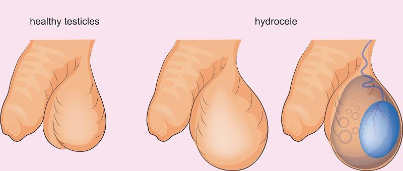 hydrokéla