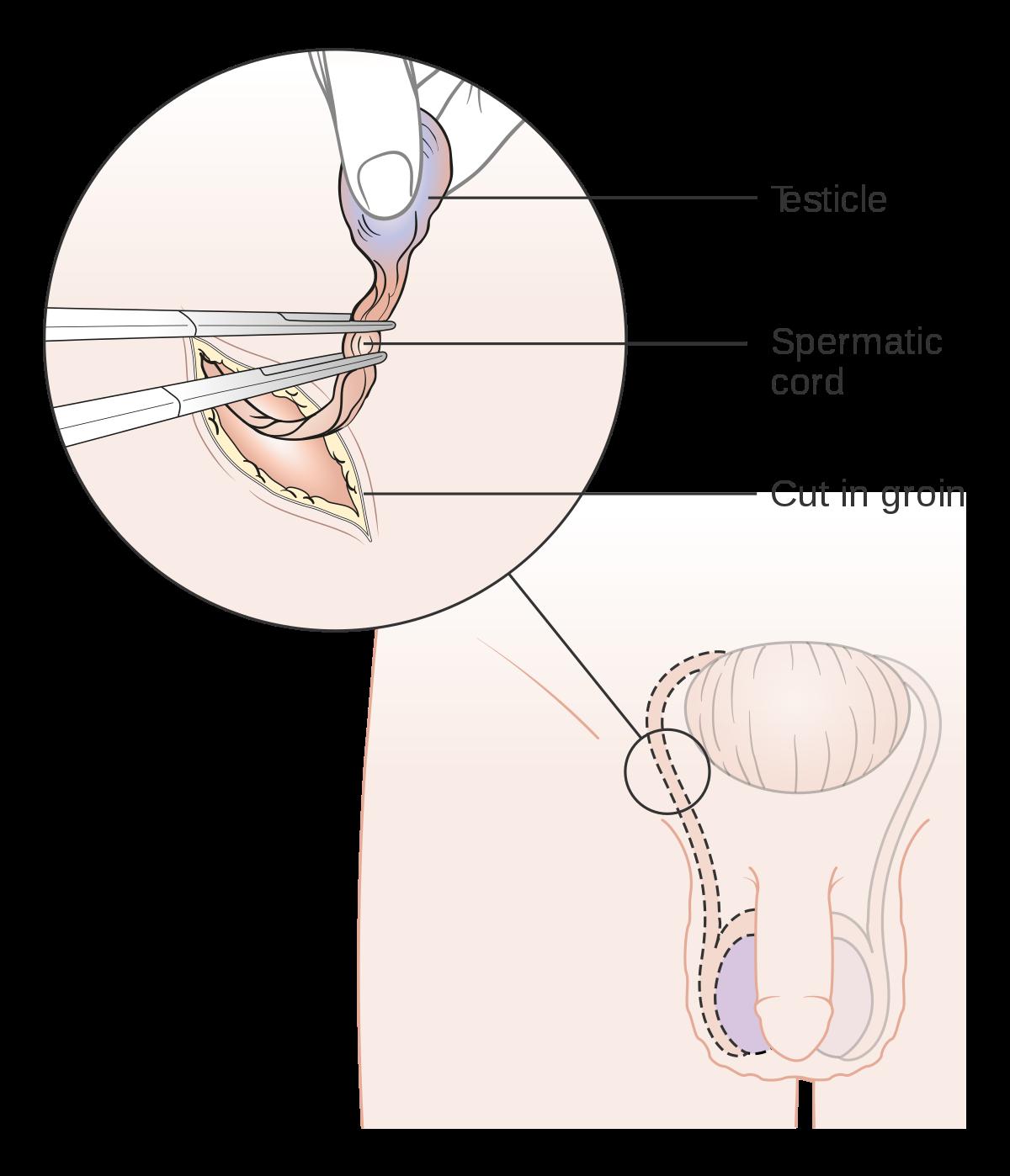 orchiektomie