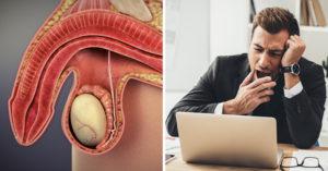erektilní dysfunkce a produktivita