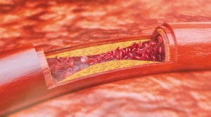 erektilní dysfunkce jako příznak kardiovaskulární nemoci